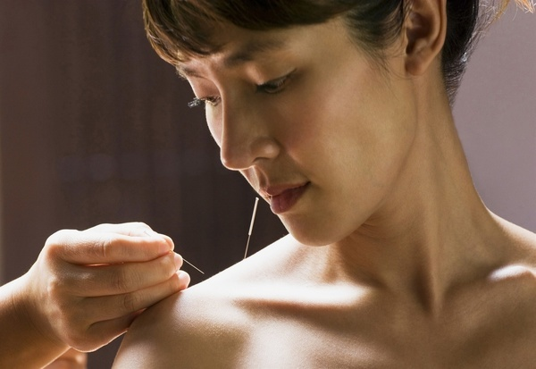 A young Asian woman looks meditative as she receives acupuncture.   MODEL RELEASED
